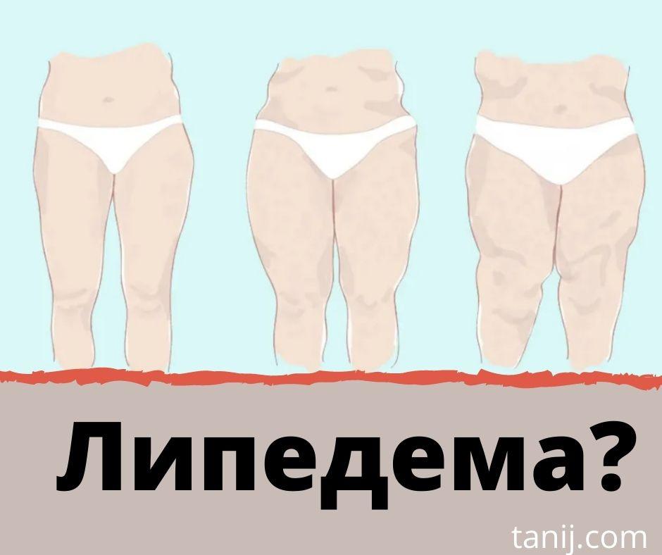 липедема что это, лечение липедемы, диета, упражнения, лимфедема, липолимфедема