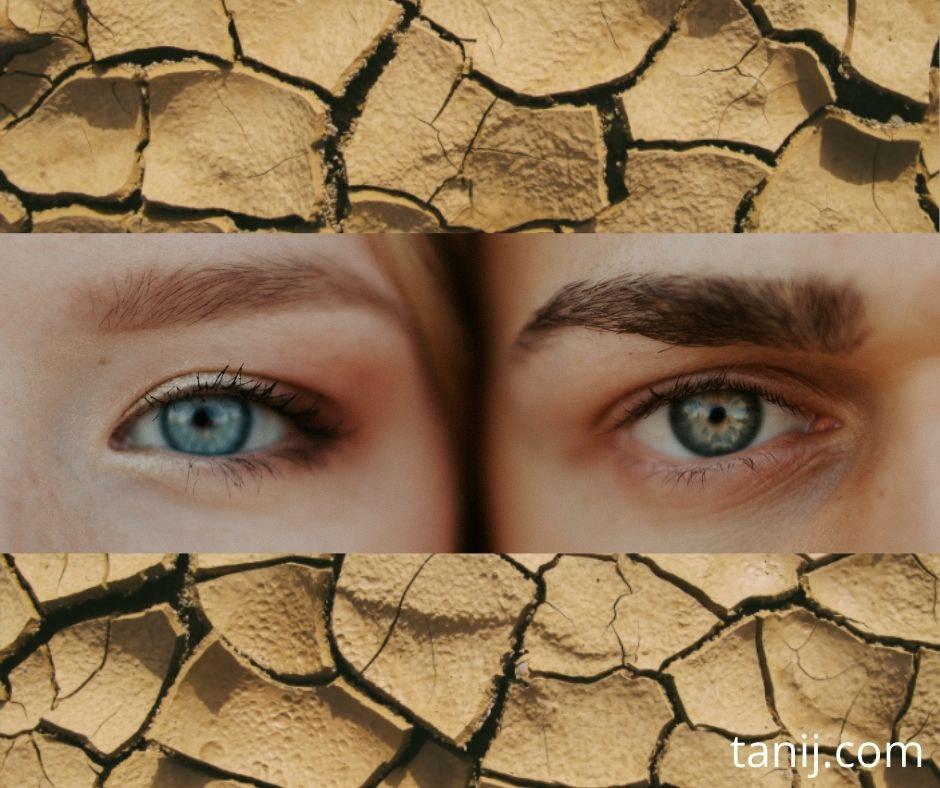 сухость глаз симптомы лечение как диагностировать